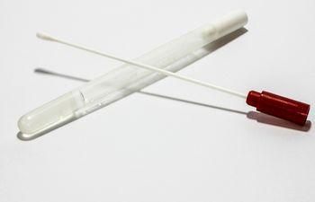 Durante la captación de donantes solo se realizará  hisopado de la mucosa de la boca (sacar saliva con un hisopo).