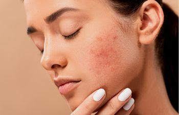 El acné se pueden presentar clínicamente como lesiones no inflamatorias (comedones abiertos y cerrados) y lesiones inflamatorias (granos rojos, con pus, nodulares y quísticos) todo esto acompañado de una piel más oleosa.
