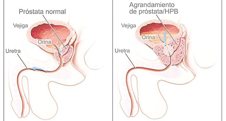 haciendo un examen para ver si la próstata se ha agrandado