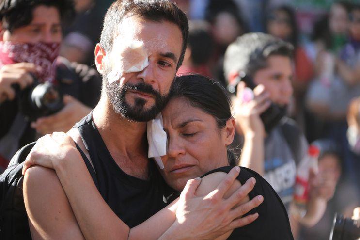 """Manifestantes protestan con un ojo vendado este viernes en la céntrica plaza Italia de Santiago de Chile, rebautizada popularmente como """"Plaza de la dignidad"""", durante una jornada de movilizaciones sociales por todo el país."""