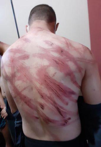 Uno de los detenidos muestra los rastros de la tremenda golpiza que sufrió.