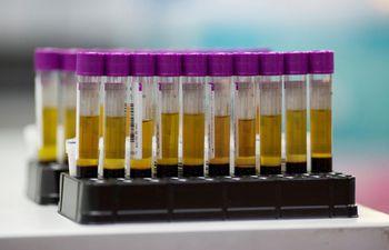 muestras-de-sangre-vih-94928000000-1654966.JPG