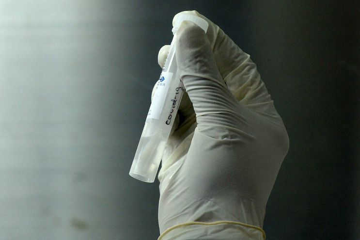 Una muestra tomada a un paciente para corroborar si tiene coronavirus.