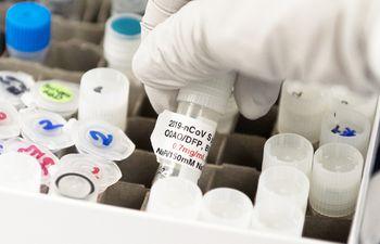 Principales potencias del mundo se disputan el hallazgo de la primera vacuna contra el covid.