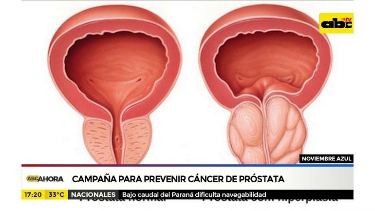 po prostata que empiece